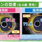 NHK「今日の健康」で「心筋梗塞を防ぐ」シリーズ その3(薬を使う)